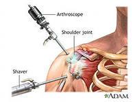 Артроскопия на плечевом суставе заболевание лучезапястного сустава лечение