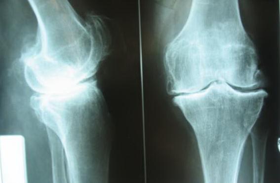операции на коленный сустав в перми