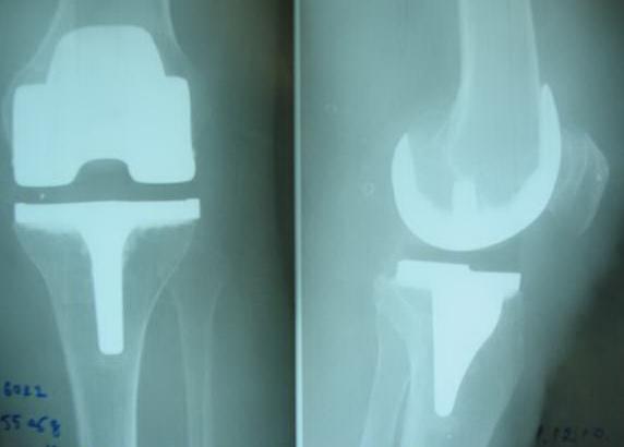 операции по замене коленных суставов в иркутске