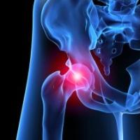 Эндопротезирование тазобедренного сустава и спорт
