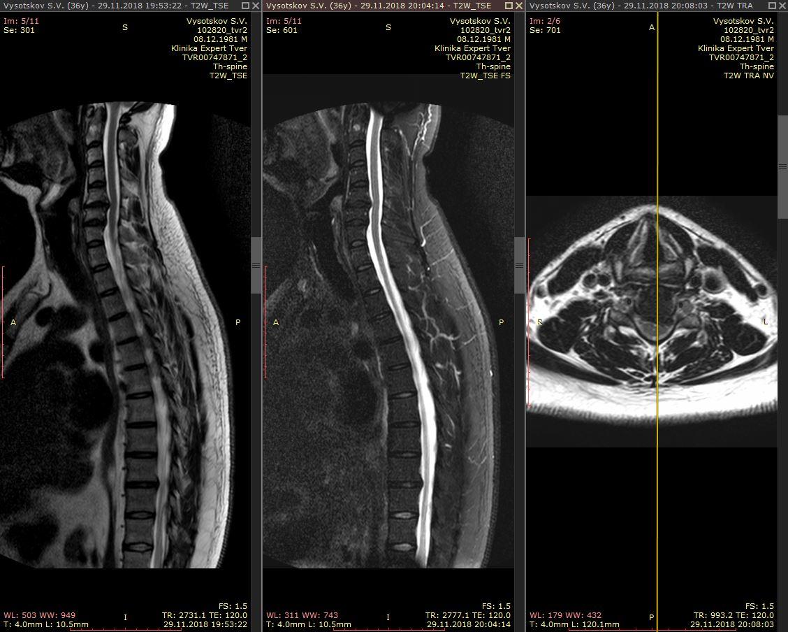 МРТ грыжи шейного отдела позвоночника
